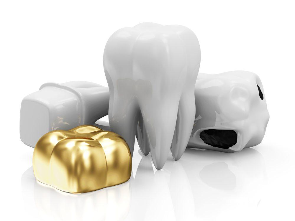 bọc răng sứ, boc rang su, bọc răng sứ bao nhiêu tiền, chi phí bọc răng sứ