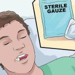 Cách cầm máu sau khi nhổ răng bạn cần lưu ý