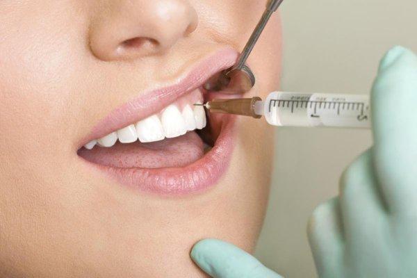 Điều trị cười hở lợi nhẹ bằng cách tiêm botox hoặc filler