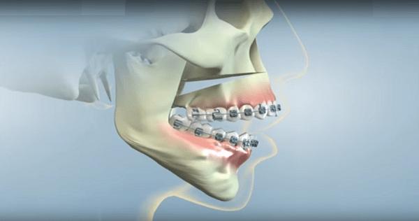 Không phải chỉ niềng răng mới chữa được hàm hô