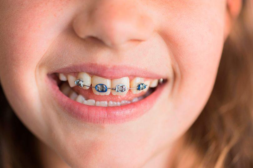 niềng răng, nieng rang, niềng răng trả góp
