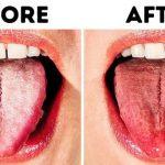 #7 cách chữa lưỡi trắng hiệu quả tại nhà