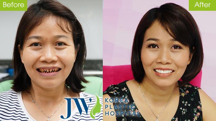 Hình ảnh Bọc răng sứ