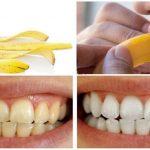 Làm trắng răng bằng chuối – Cách làm trắng răng 2 trong 1