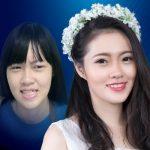 9X Vũng Tàu đốn tim người khác nhờ vẻ đẹp thiên thần sau niềng răng