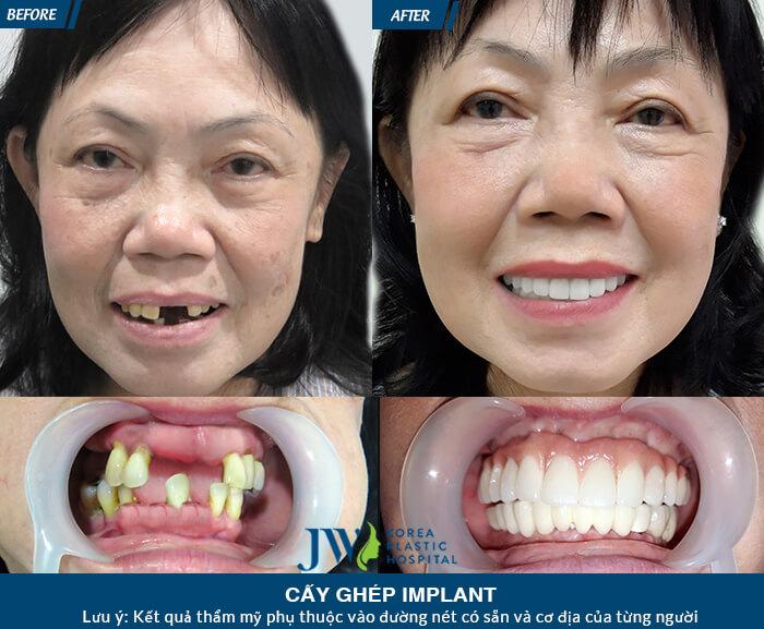 cấy ghép implant tức thì, cấy ghép implant, cay ghep implant