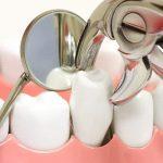 Phải làm gì khi gặp phải biến chứng chảy máu kéo dài sau khi nhổ răng?