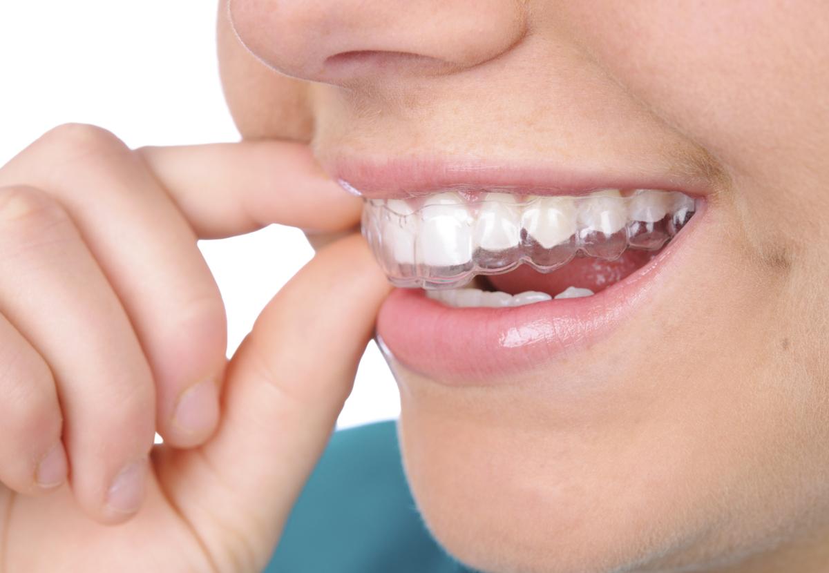Chi phí niềng răng Invisalign bao nhiêu tiền