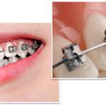 Loạt ảnh minh chứng rõ nét sự vi diệu của niềng răng