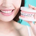 #4 mẹo vệ sinh răng miệng đúng cách khi niềng răng bạn cần biết?