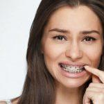 Niềng răng để làm gì và có thật sự cần thiết không