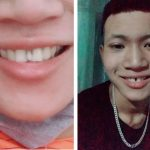 Thanh niên thấy răng mọc thừa bèn đi nhổ và cái kết vô duyên không tưởng