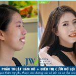 Sự lột xác ngoạn mục của cô gái trẻ sau cuộc đại phẫu hàm hô