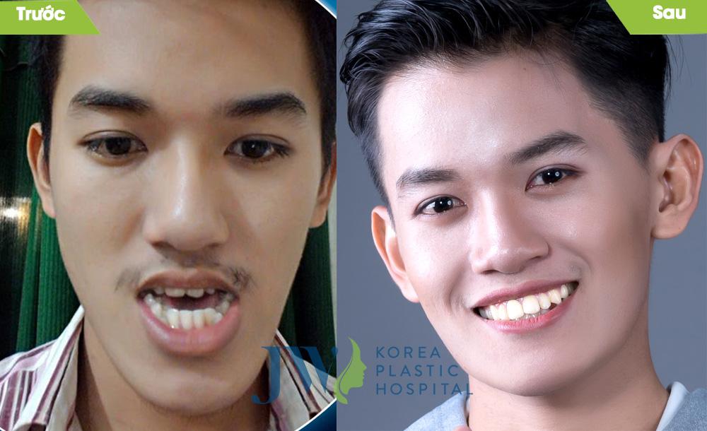 Ca Trần Khánh Du - Niềng răng kế hợp phẫu thuật hàm