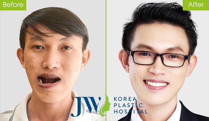 Thạc sĩ xe ôm Duy Phương - Niềng răng kế hợp phẫu thuật hàm
