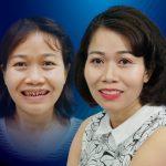 Cứu chữa hàm răng suýt bị hỏng do tin lầm nha sĩ dỏm