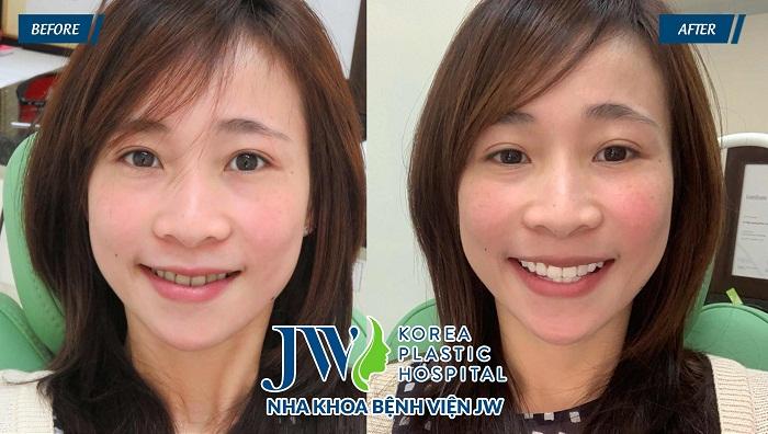 Hình ảnh khách hàng sử dụng công nghệ Tẩy trắng răng Led Bleaching