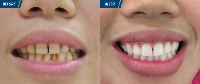 Hình ảnh Khách hàng Tẩy trắng răng tại JW