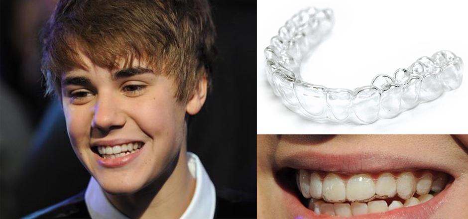 Justin Bieber niềng răng trong suốt, Justin Bieber niềng răng invisalign