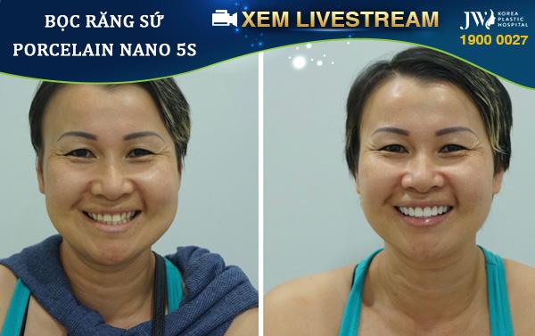 Livestream Bọc răng sứ không mài răng đúng hay sai | Nha Khoa JW