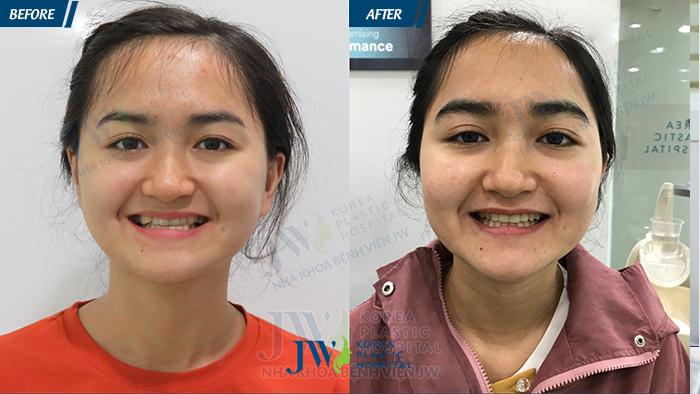 Hình ảnh trước và sau khi niềng răng tại JW Hàn Quốc