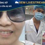 [ Livestream ] Bọc răng sứ cho 2 răng cửa bị hô ?