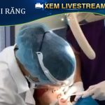 [ Livestream ] Cạo vôi răng định kì cho khách hàng tại Nha khoa JW