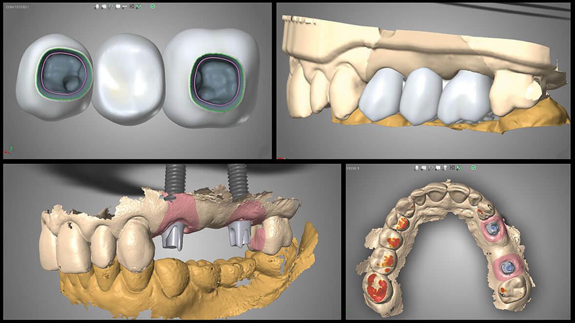Tất cả quá trình cấy ghép implant đều được hiển thị trên màn hình máy tính liên kết