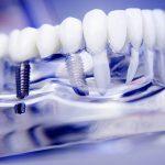Cấy Ghép Implant Kỹ Thuật Số – Răng Đẹp Thời 4.0