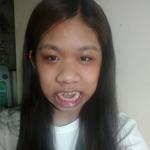 Lạ lùng chuyện cô gái đầy lông lá mang trong mình 10 căn bệnh hiếm gặp