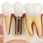 3 đặc điểm nổi bật của cấy ghép implant kỹ thuật số