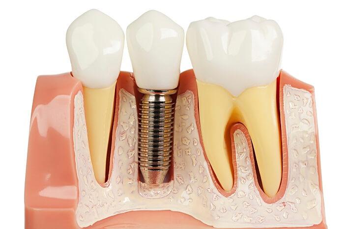 Đặc điểm nổi bật của cấy ghép implant kỹ thuật số