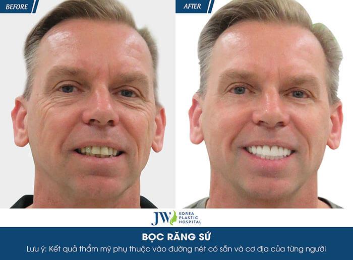 rang su5 - Khi nào nên bọc răng sứ ?