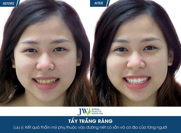Tẩy trắng răng bằng công nghệ Led Bleaching