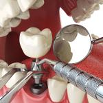 Mất răng toàn hàm phải làm sao? Xem ngay video này để biết
