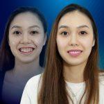 Nữ Việt Kiều Anh sở hữu nụ cười rạng rỡ sau khi dán sứ veneer toàn hàm
