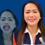 Nữ Việt Kiều bọc răng sứ để thêm tự tin trong công việc