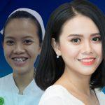 Nữ y tá xinh đẹp bất ngờ sau 2 năm niềng răng