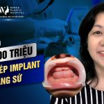 Đại gia U50 chi hơn 100 triệu đồng cấy ghép implant và làm răng sứ
