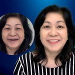 Người phụ nữ U50 quyết định cấy ghép implant vì sự hiếu thảo của con gái