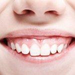 Hở lợi niềng răng có hiệu quả không?