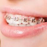 Niềng răng mắc cài kim loại – Giải pháp tối ưu khắc phục khuyết điểm về răng
