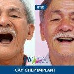 Cấy ghép implant giúp cựu chiến binh tìm lại nụ cười sau 20 năm
