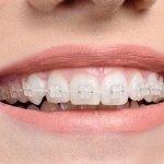 Niềng răng kỹ thuật số phương pháp chỉnh nha tối ưu nhất hiện nay
